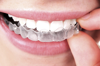 Top Medical Clinic INVISALIGN